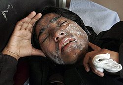 afghan-acid-cp-250-5831334