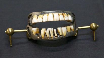 dentures-7-3-2013-shenk-150