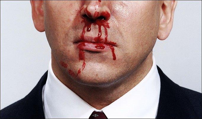bloody-nose